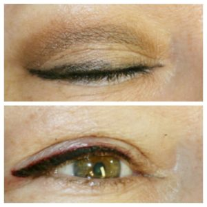 Top eyeliner